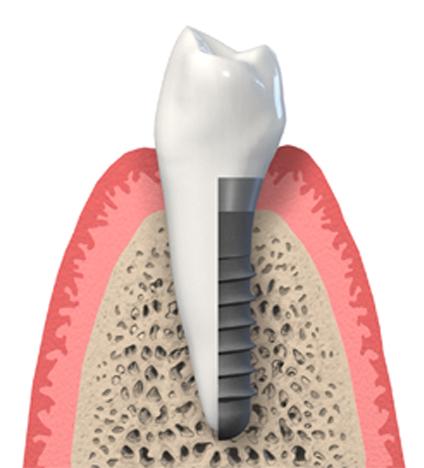 Implantate sind künstliche, im Kiefer festsitzende und später unsichtbare Zahnwurzeln.