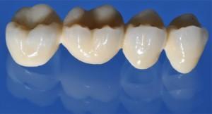 Zirkonoxid -  Hightech-Keramik für höchste Belastungen